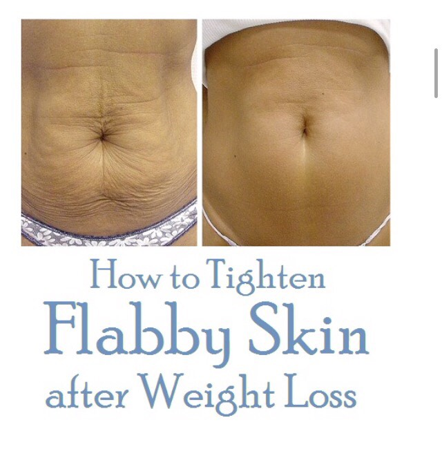 How To Tighten Flabby Skin After Weight Loss By Elizabeth Garcia