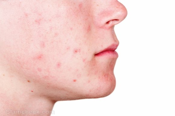 Do you suffer from acne? Here's a solution that is inexpensive and natural
