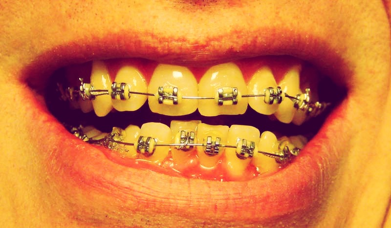 NEVER GET YELLOW BANDS! They make your teeth look grotie!! Also avoid white if your teeth aren't perfectly white and black isn't the best either. Girls, pick something that goes with your eyes. No lie!