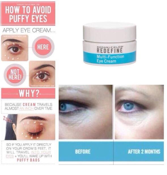 Have Puffy Eyes And Dark Circles Rf Has The Best Eye Cream