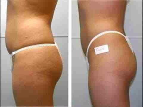 Dry brushing is the best natural cure for cellulite. It helps to break down any trapped toxins from within your body and help eliminate them.