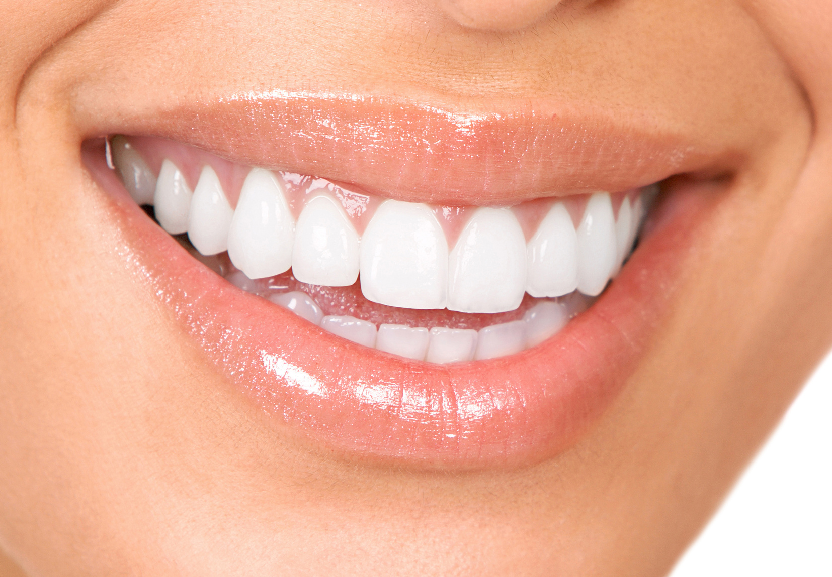 I will assure you, you won't get perfectly white teeth like the color of printer paper, but boy, it's close.