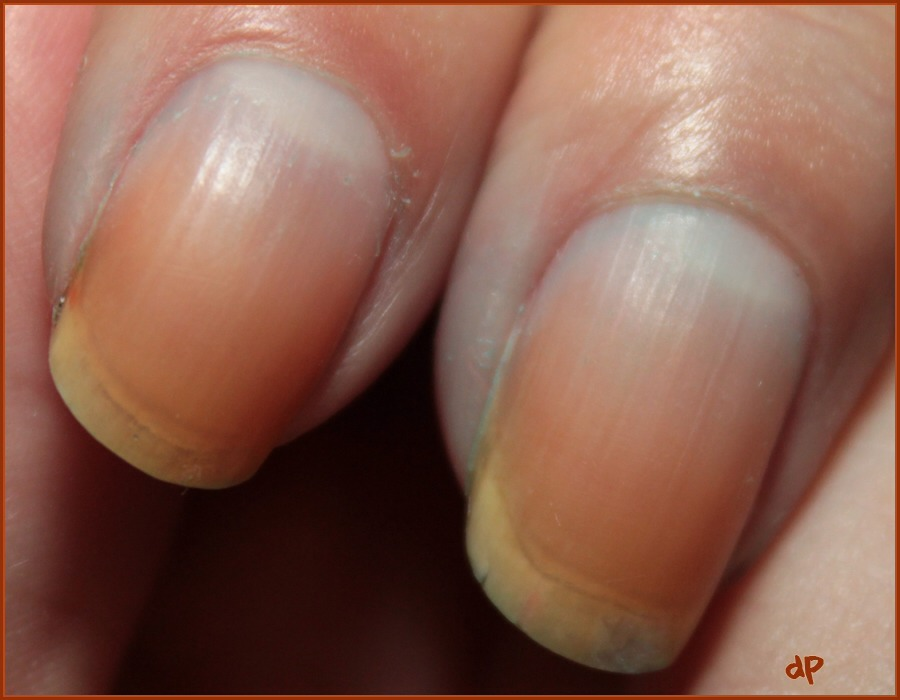 Removing Pink And Red Varnish Without Stained Nails By