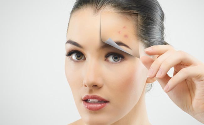Get rid of acne quickly with these tips