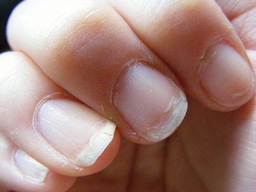 weak nails,nari