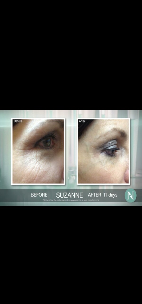 say goodbye to crows feet