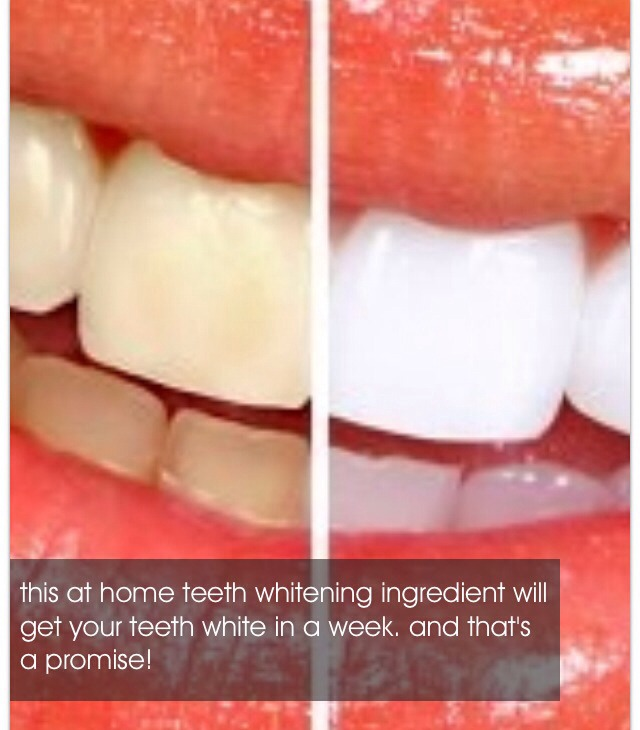 How To Whiten Teeth Instantly By Kelly Musely