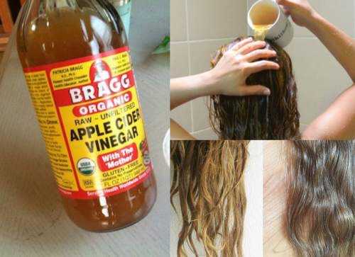 BLAST AWAY DANDRUFF Apple cider vinegar has natural antifugal properties and therefore can help eliminate a flaky scalp caused by dandruff. Create your own cleansing shampoo by mixing a solution that's half water and halfACV into a spray bottle and apply.