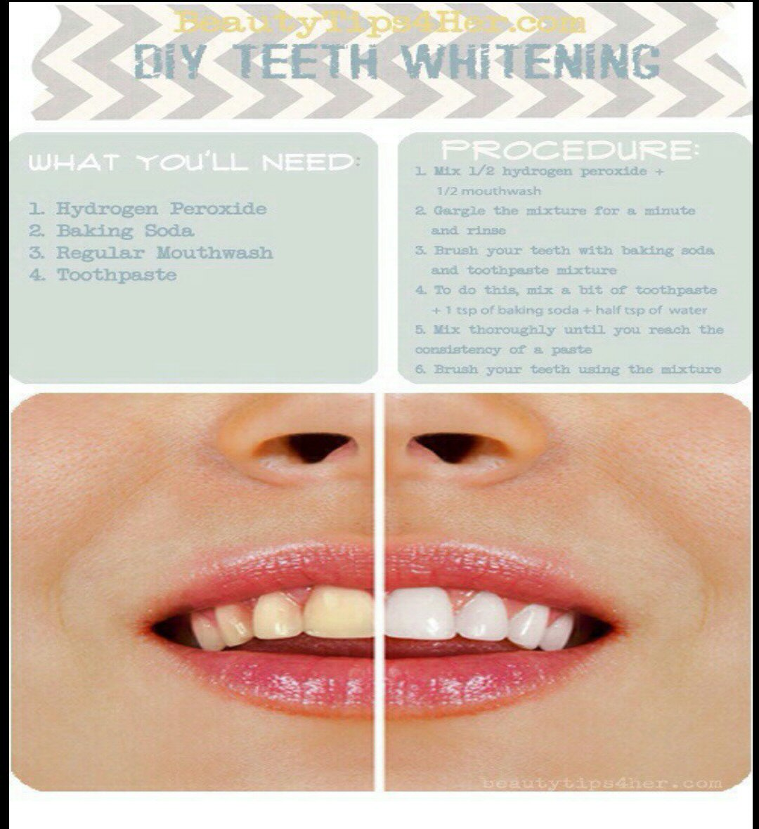 teeth whitening how to