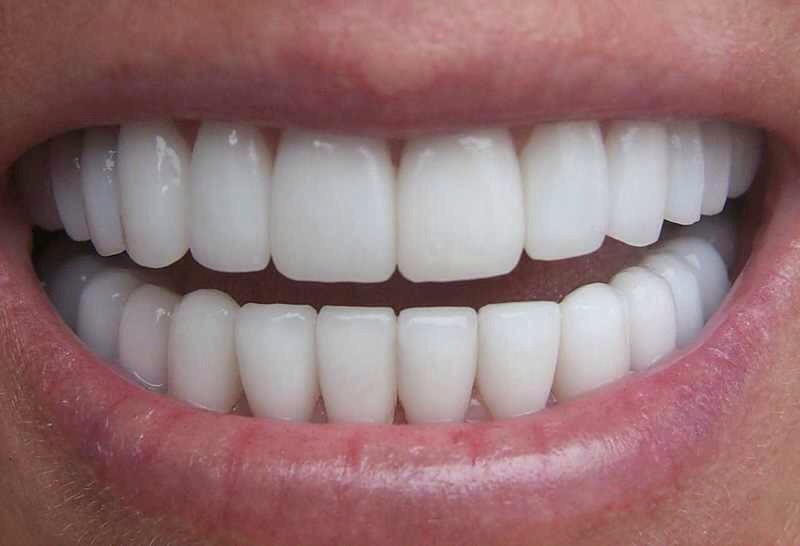 ORAL HEALTH: Baking soda is a popular ingredient in toothpastes and mouthwashes since it has been shown to enhance plaque removal. You could just dip your toothbrush into baking soda so you don't have to buy the expensive toothpaste, it works just the same.