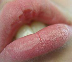 3. Protect And Heal Cracked Lips