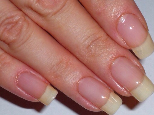 Apply to your nails constantly and they could be as long as theses.
