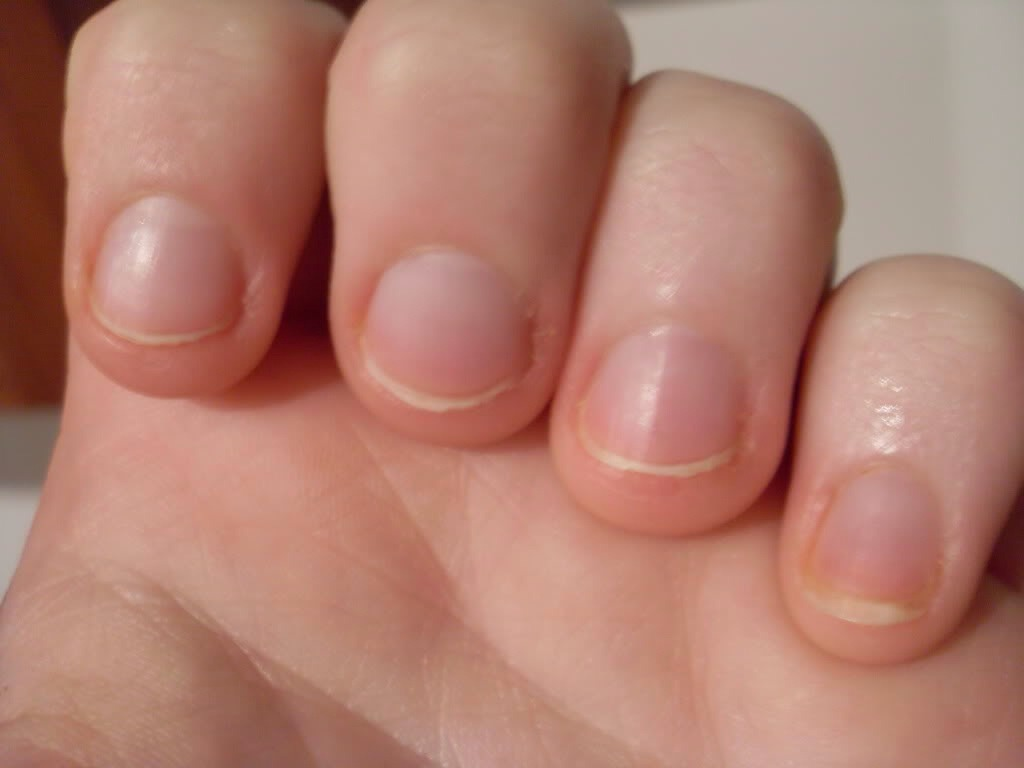 Hey girls; we all have that fingernail biting habit at some point or another and our nails look like this right?