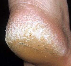 Add to you're feet and guaranteed less than a week they will be getting better