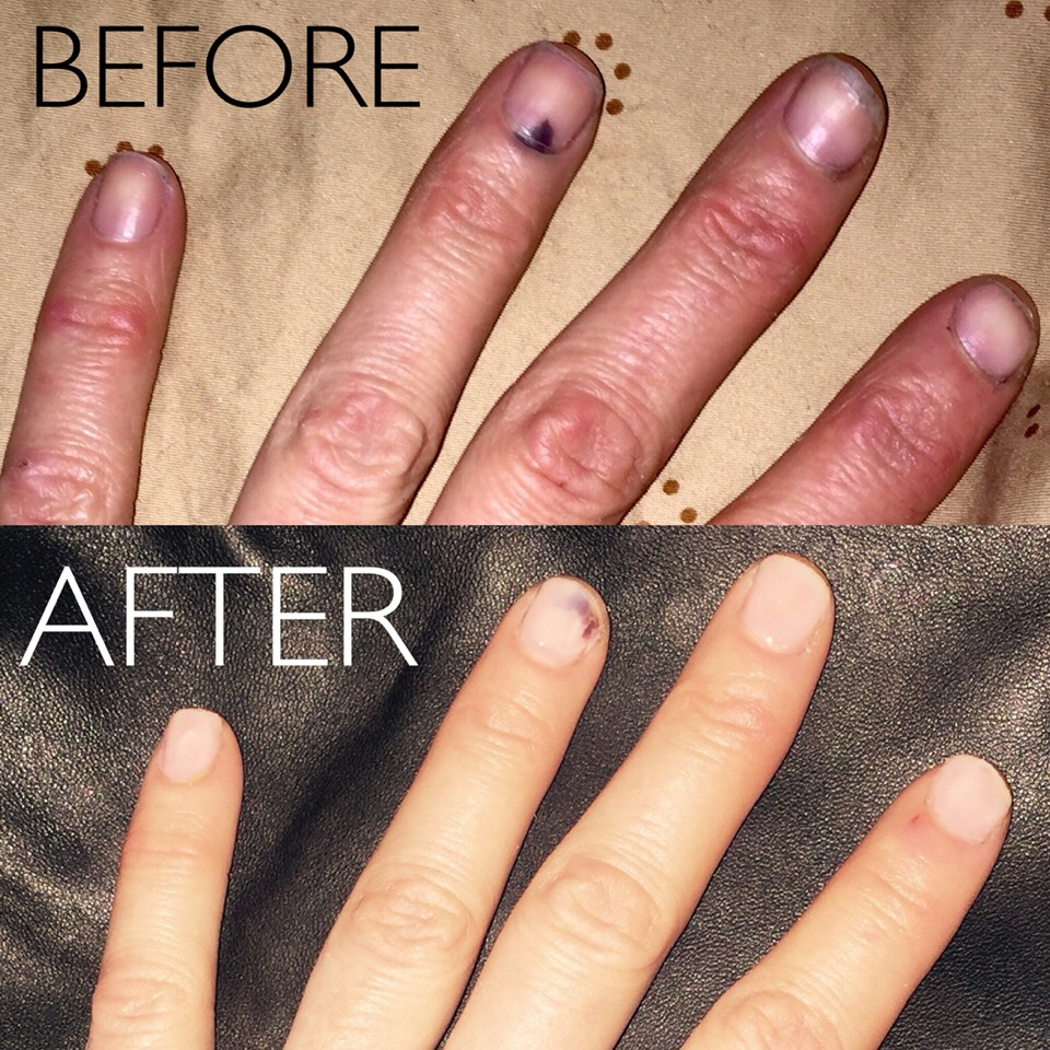 The top photo is what my nails looked like a couple months ago. I began using the DREAM by PS COSMECEUTICAL Nail Hardener, Ridge filler, Base, and Top coat religiously. I think the bottom photo speaks for itself ofhow effective this product line truly is.