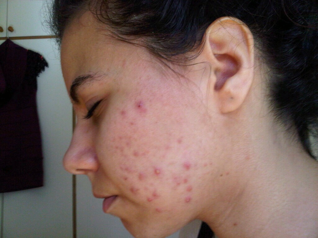 We all get spots! Some people get them worse than others and here are a few helpful tips on how to get rid of them!