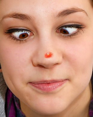 How to get rid of stubborn pimples
