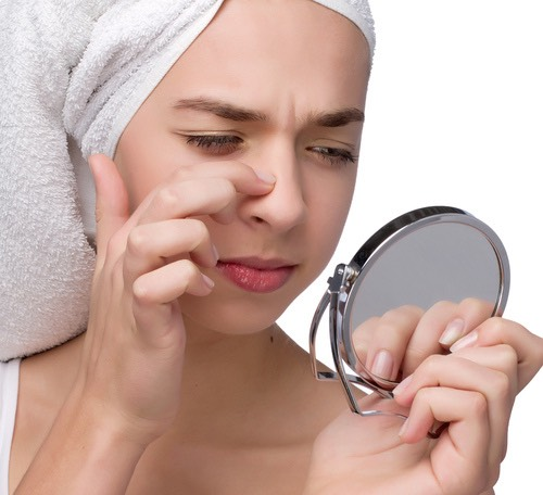 Tired those unwanted, irritable and painful blackheads? Here's a way to get rid of them!
