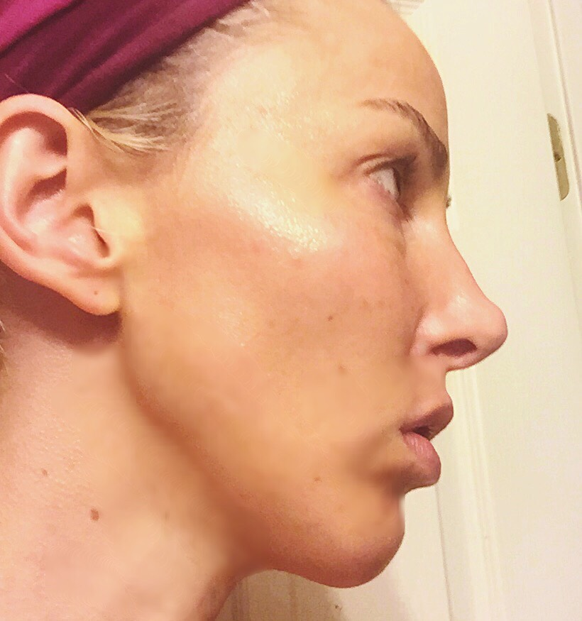 I saw significant improvement in my complexion within a week. 2 months later I am in awe of the radical difference I see when I look in the mirror. My skin tone & texture are greatly improved & it has a vitality that I've never seen before, people have been asking me what I'm using on my face!
