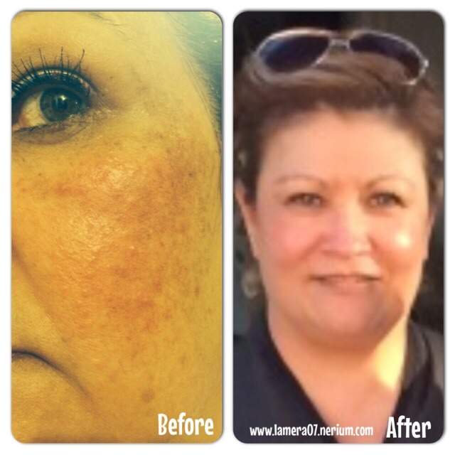 Rosacea? (This is my aunt she suffered for 10 years with rosacea her skin became clear in a 2 month of use of the Night Cream and Day Cream)