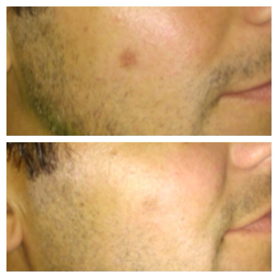 The Reverse regimen results after two weeks This regimen fights sunspots, sun damage, wrinkles, and also now has vitamin c for brightening(fighting the dullness).