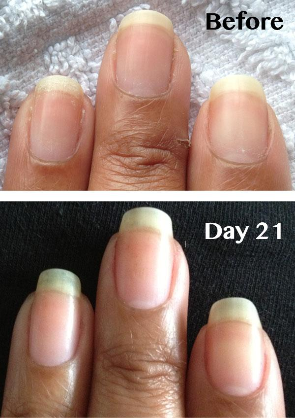 7. Are your nails splitting? This could be because of calcium deficiency. For this you can add calcium rich food in your diet. You can also boil eggs and use their shell powder (3gm) daily in your breakfast by mixing it with milk or curd
