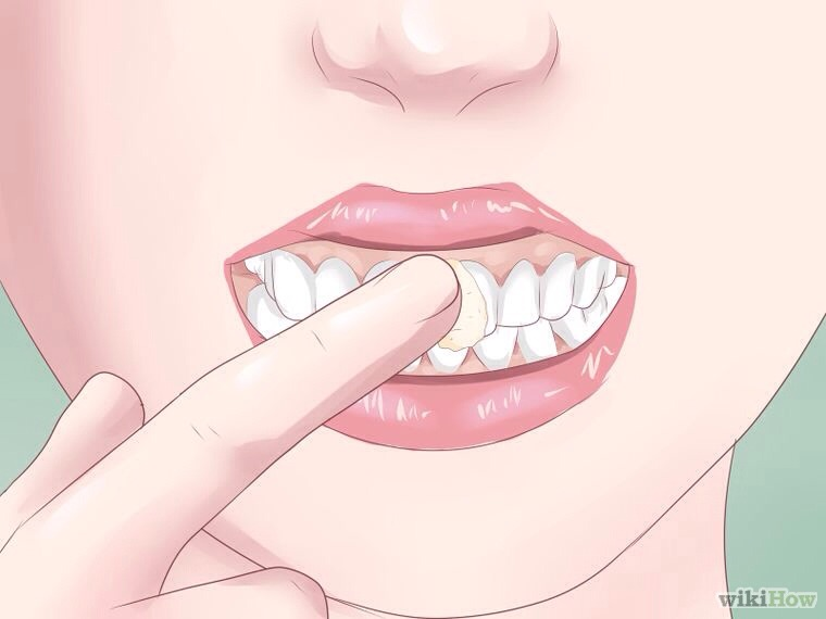TEETH - While it may seem odd, applying Vaseline to the teeth is an old stage-hand trick, used to get dancers and other performers more enthusiastic about grinning. Vaseline prevents your lips from sticking to your teeth. Done correctly, it can prevent lipstick from getting on your teeth.