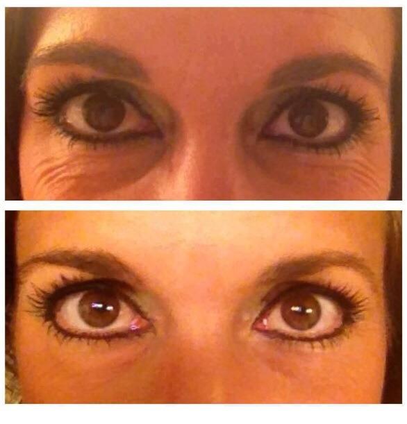 Reduce Wrinkles Around The Eyes Rodan Fields Eye Cream Is Very
