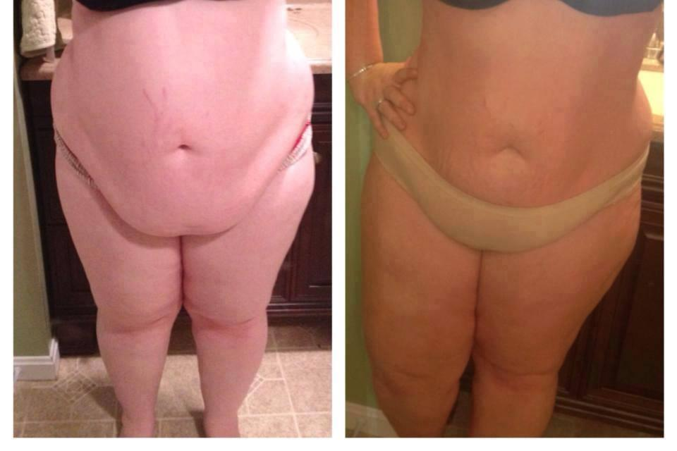 Quick Results Will Get You Bikini Ready In As Little As 45
