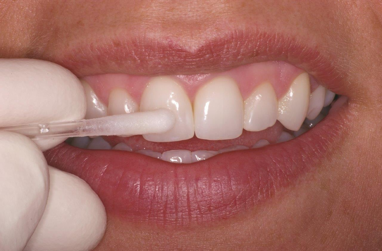 Dip your cotton swabs in one of them... Or both. Apply to your teeth. (: