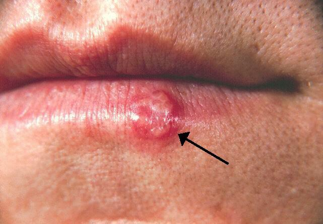 Everybody who's ever had one knows, cold sores SUCK!! They always come before an interview, wedding day, or a presentation. Read on for tips to getting rid of that pesky cold sore quickly!!
