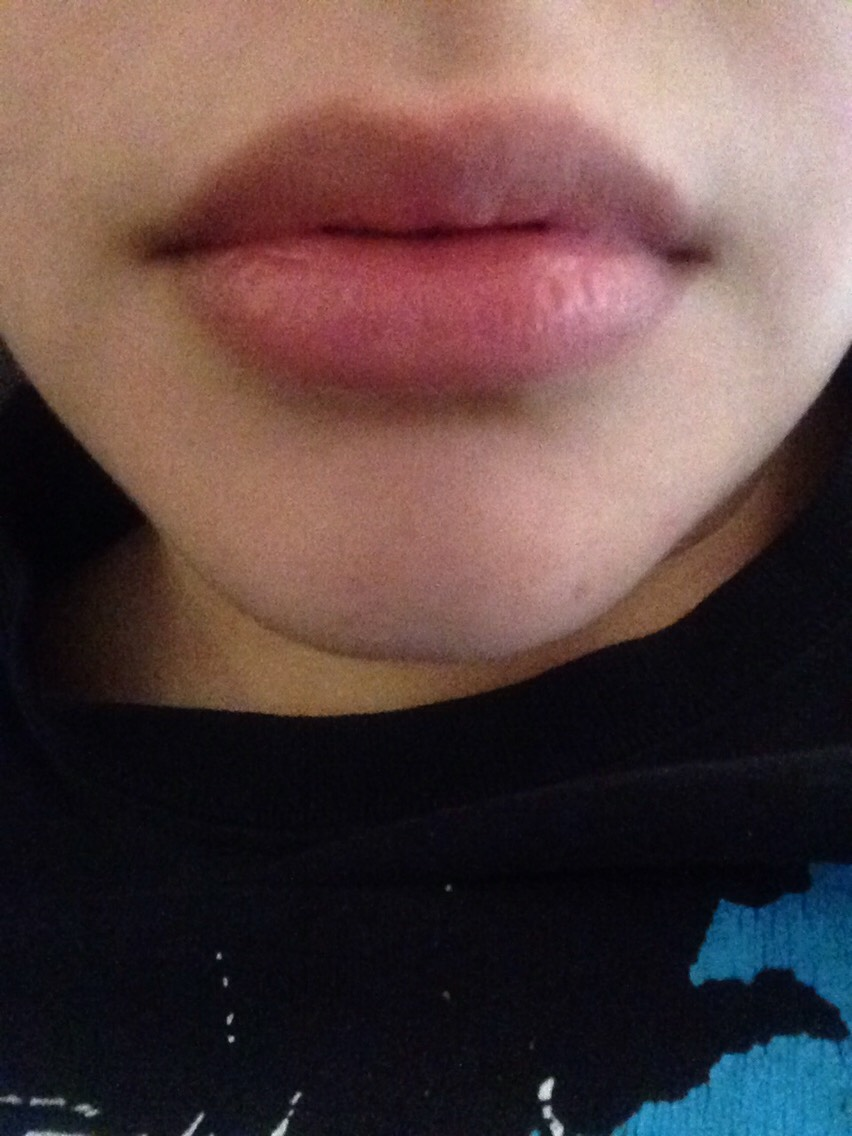 Before satin lips treatment. Lips were dry, cracked, and had a dark circle lining