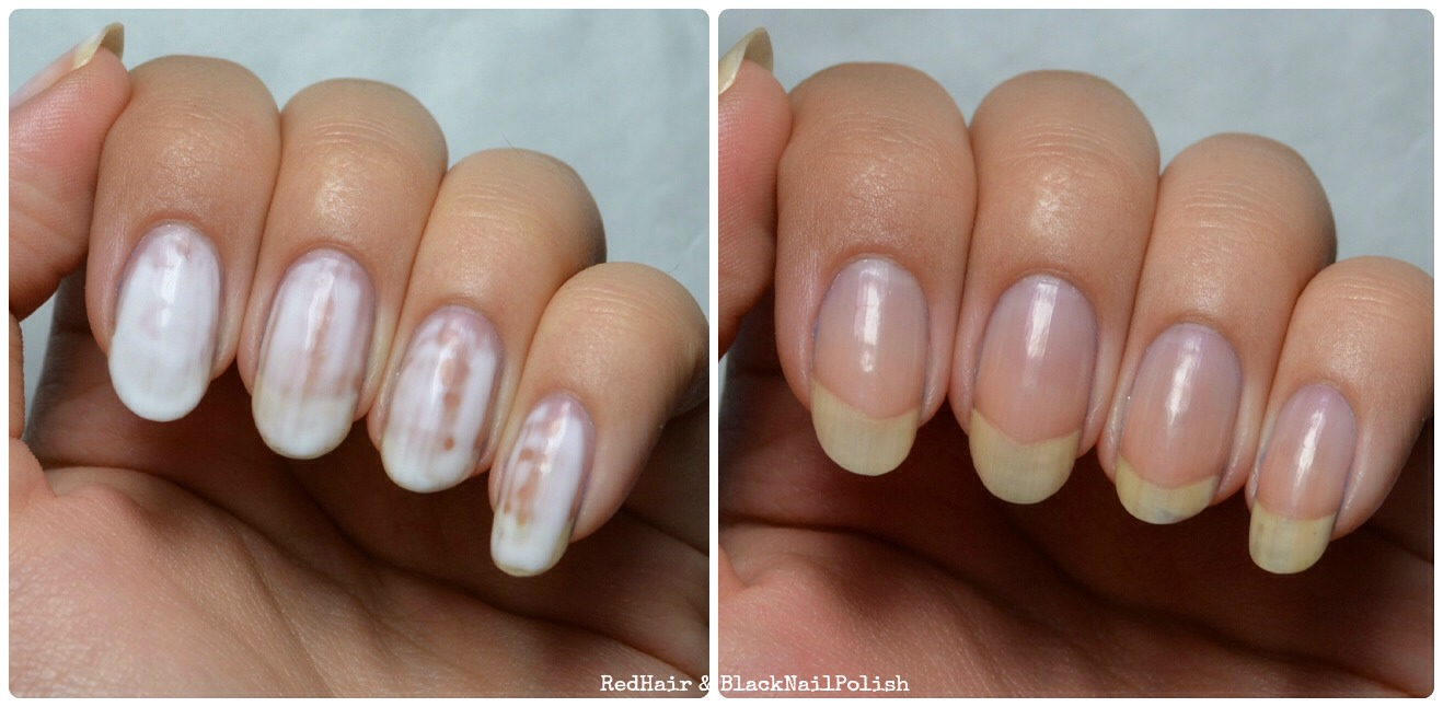 Always Use Acetone Free Formula Based Nail Polish Remover As It Is Very Harsh To Your Nails Dries Out The And Thus Damages Its Surface