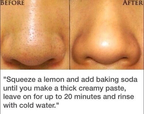 get rid of blackheads in 20 minutes