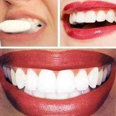 Every morning you wake up and wash your mouth just pre wash your teeth with BAKING SODA. Run warm water clean your tooth brush just to moist the brush. Then gently brush the tooth brush in the container of baking soda. Apply and brush your teeth as if it was a regular toothpaste.