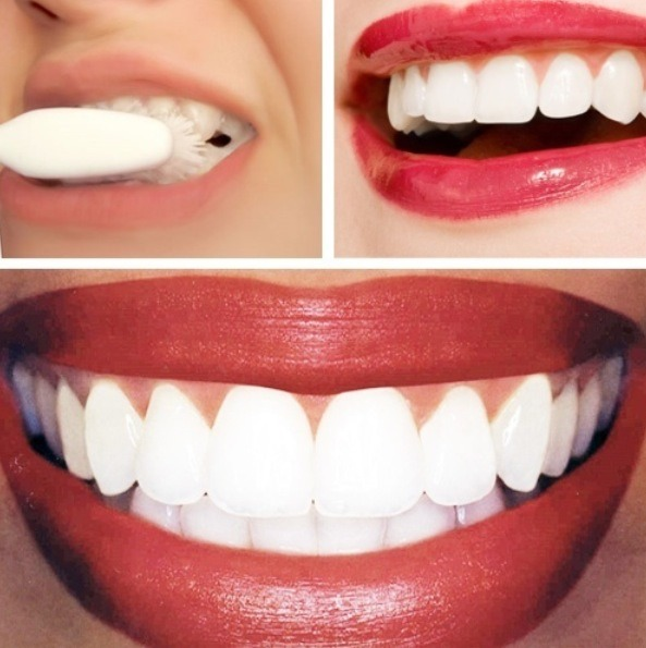 Mix lemon juice and baking soda into a paste. Rub onto your teeth with a cotton ball and let it sit for about a minute then brush off. You will see results!