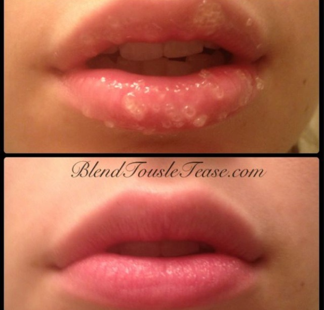 Before and after  How to apply lip scrub: vigorously with the lip scrub rub your lips in a circular motion, after done lick the lip scrub off your lips, after that add your favorite Chapstick/ lip moisturizer.