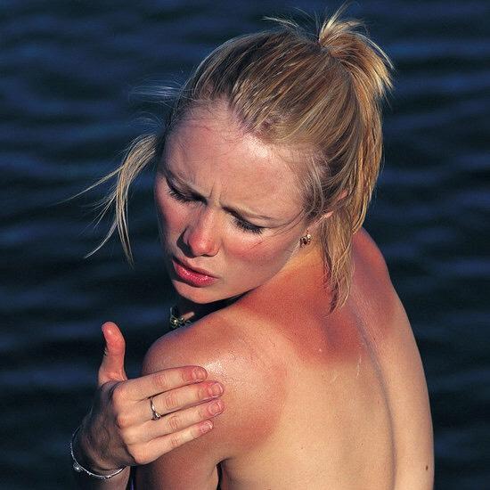 it can ease and help moisturise sun burn, and again, dry skin.