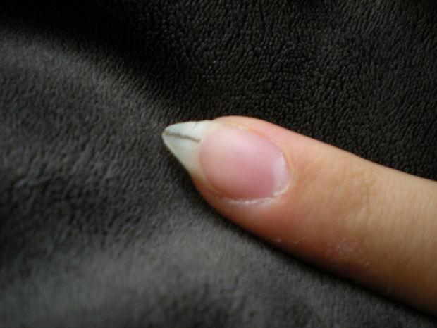 VERY VERY CAREFULLY use the scissors to make a vertical cut down the length of the nail from the middle of the tip to the nail bed. Center it as well as you can (again, I found it useful to draw a guide).