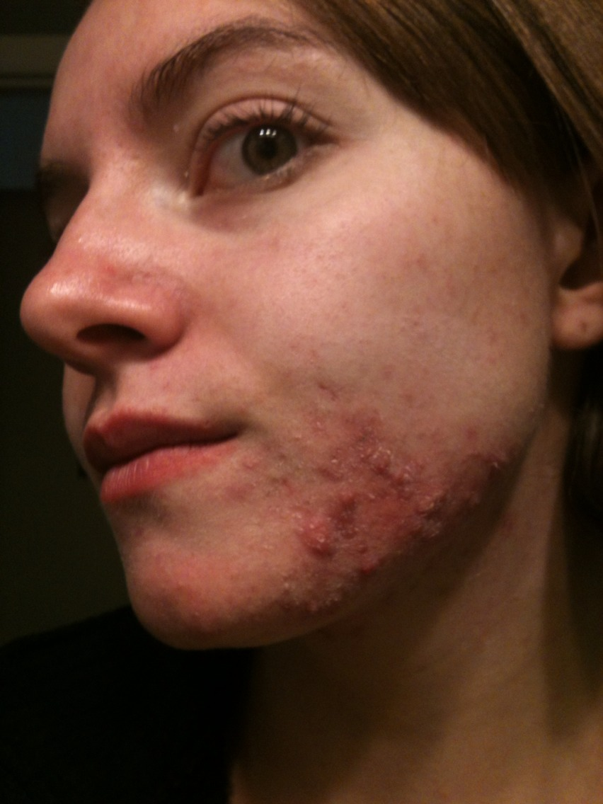 acne vulgaris dermnet nz - HD852×1136