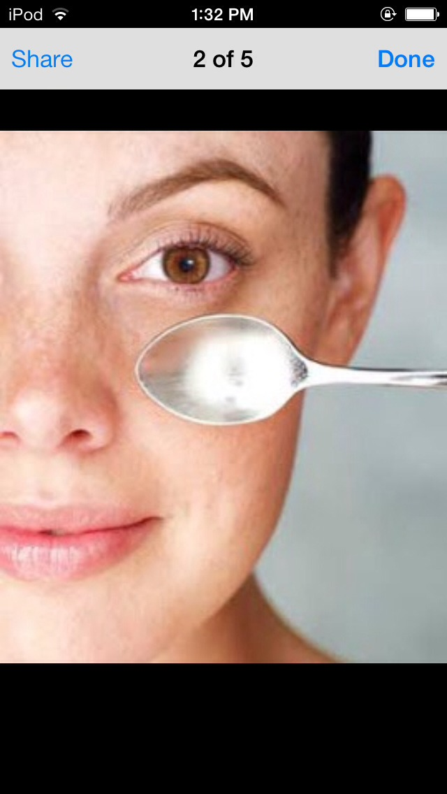 Put two spoons in the freezer. Once completely cold hold under eyes until they're no longer cold. Do this once a day.