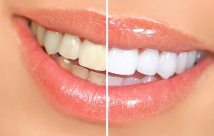 Want a fast way to whiten your teeth?  All you need is  BAKING SODA AND YOUR REGULAR TOOTH BRUSH.