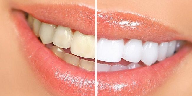Want whiter teeth in just seven days? Follow these easy steps.