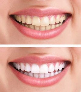 Do you want your teeth like this? Keep reading to find out the banana trick😉