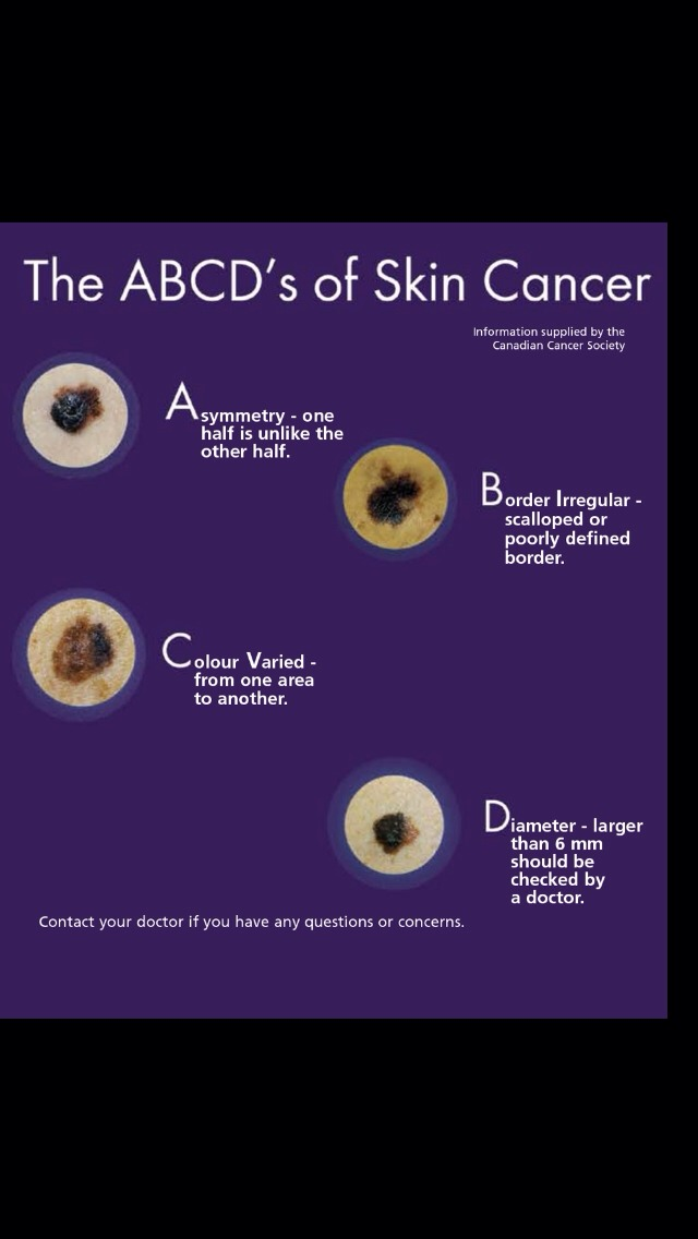 The ABCDs Of Skin Cancer by Paayal Dyer - Musely