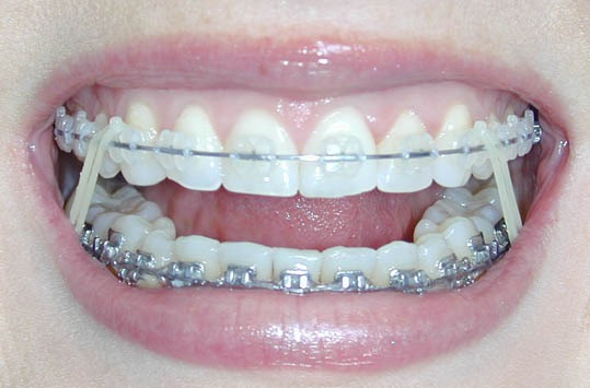 The orthodontist will most likely give to elastics later on Make sure you wear them! The more you were them the less time you have to wear them