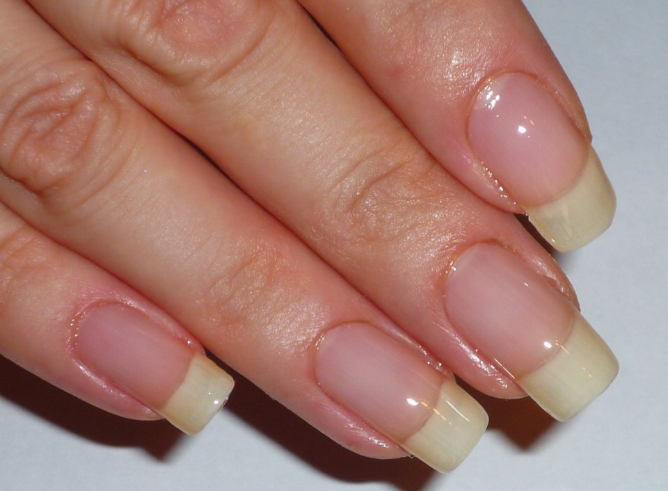 After a couple of weeks, your nails will be as long as these! (Or even longer, it depends on how long your nails were at the beginning).