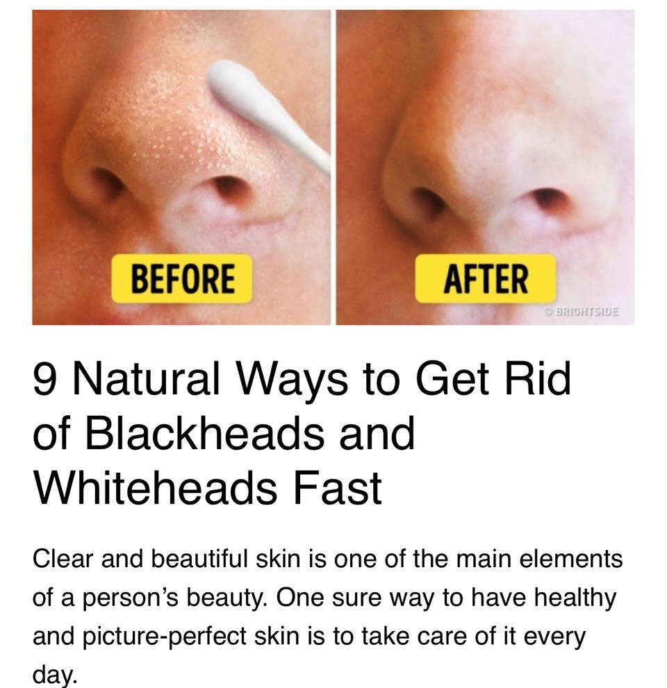 Natural Ways To Get Rid Of Blackheads And Whiteheads Fast