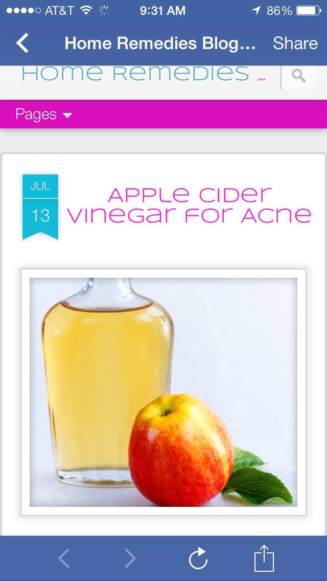 So, how does the apple cider vinegar for acne actually work?  Follow the steps below.    Ingredients:  Diluted Apple Cider Vinegar cotton swabs