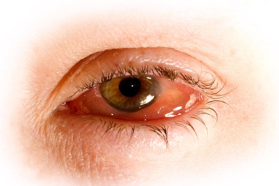 поражение глаз при хламидиозе